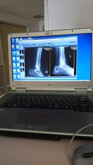 bone2after